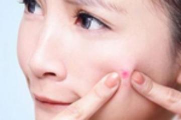 长了痤疮 可以擦护肤品吗?